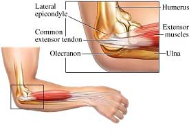Diagram of tennis elbow